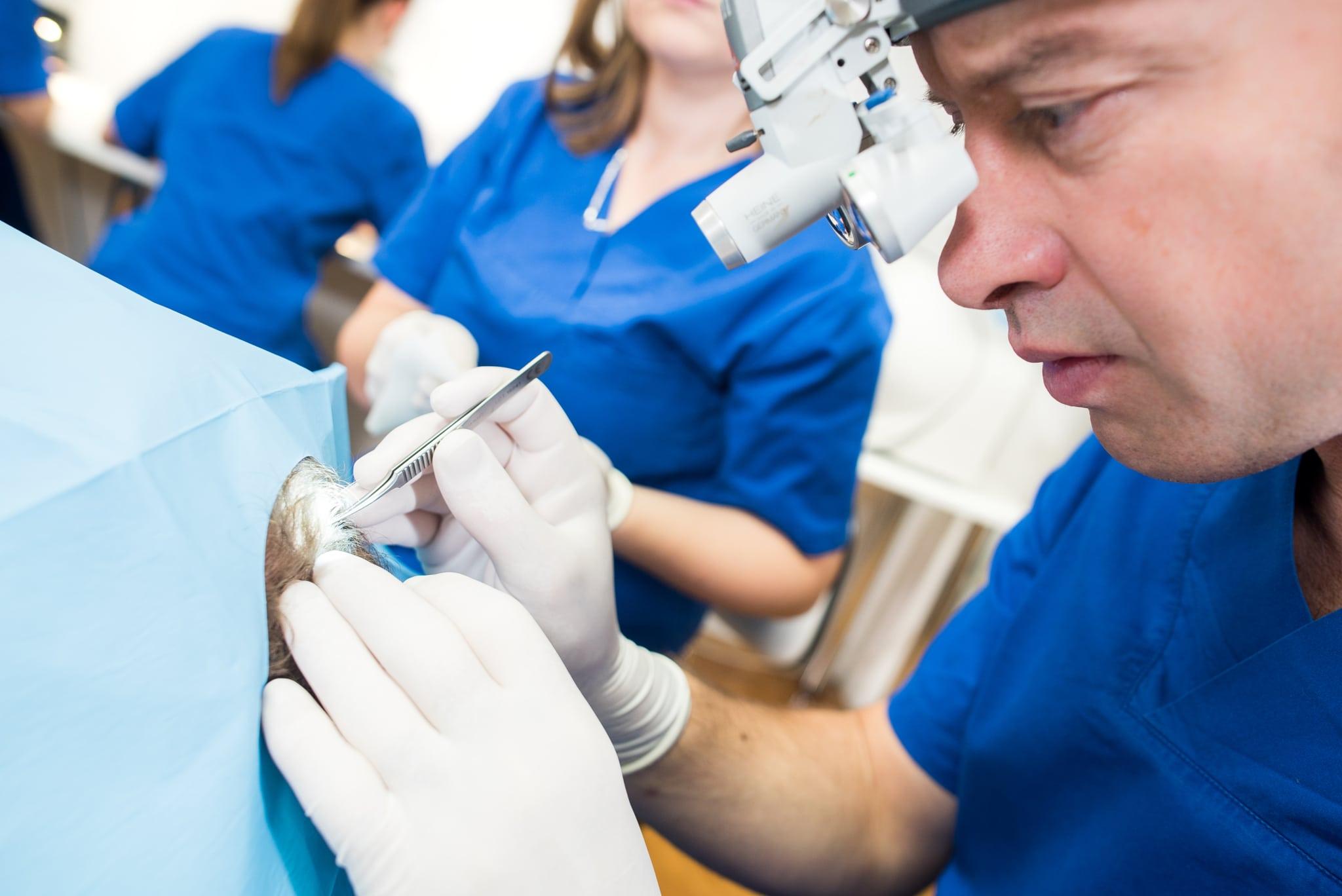 Proces FUE transplantacije kose